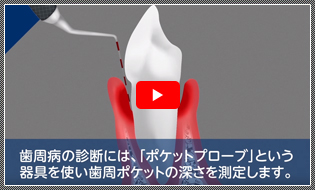 アニメーション動画 ミモデンタルクリニック様